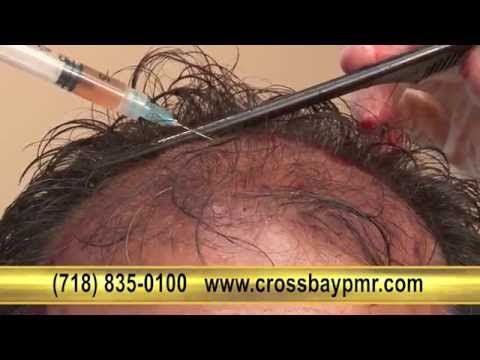 Hair Loss Treatment - Platelet Rich Plasma (PRP), Queens, Brooklyn, Nassau County, NYC