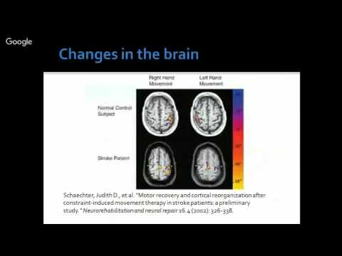 Constraint Induced Movement Therapy - Part I - How To Apply?