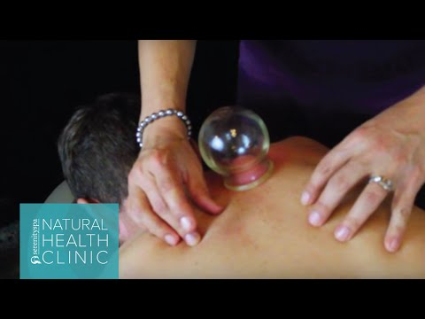 Acupuncture: Cupping Therapy