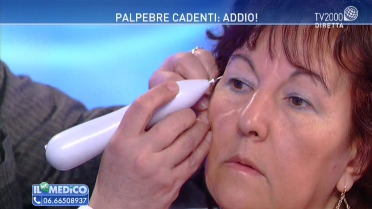 "Amato Il mio Medico - ""Palpebre cadenti: addio!"" - YouTube SP27"
