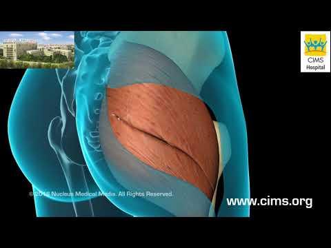 Total Hip Replacement (Gujarati) - CIMS Hospital