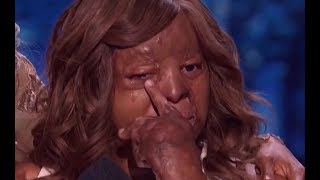 She Made Judges Very Emotional and Starts to CRY   PLANE CRASH SURVIVOR | Semifinals 2 | AGT 2017