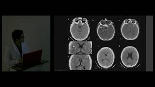 Isquemicas seram lesiones cerebrales