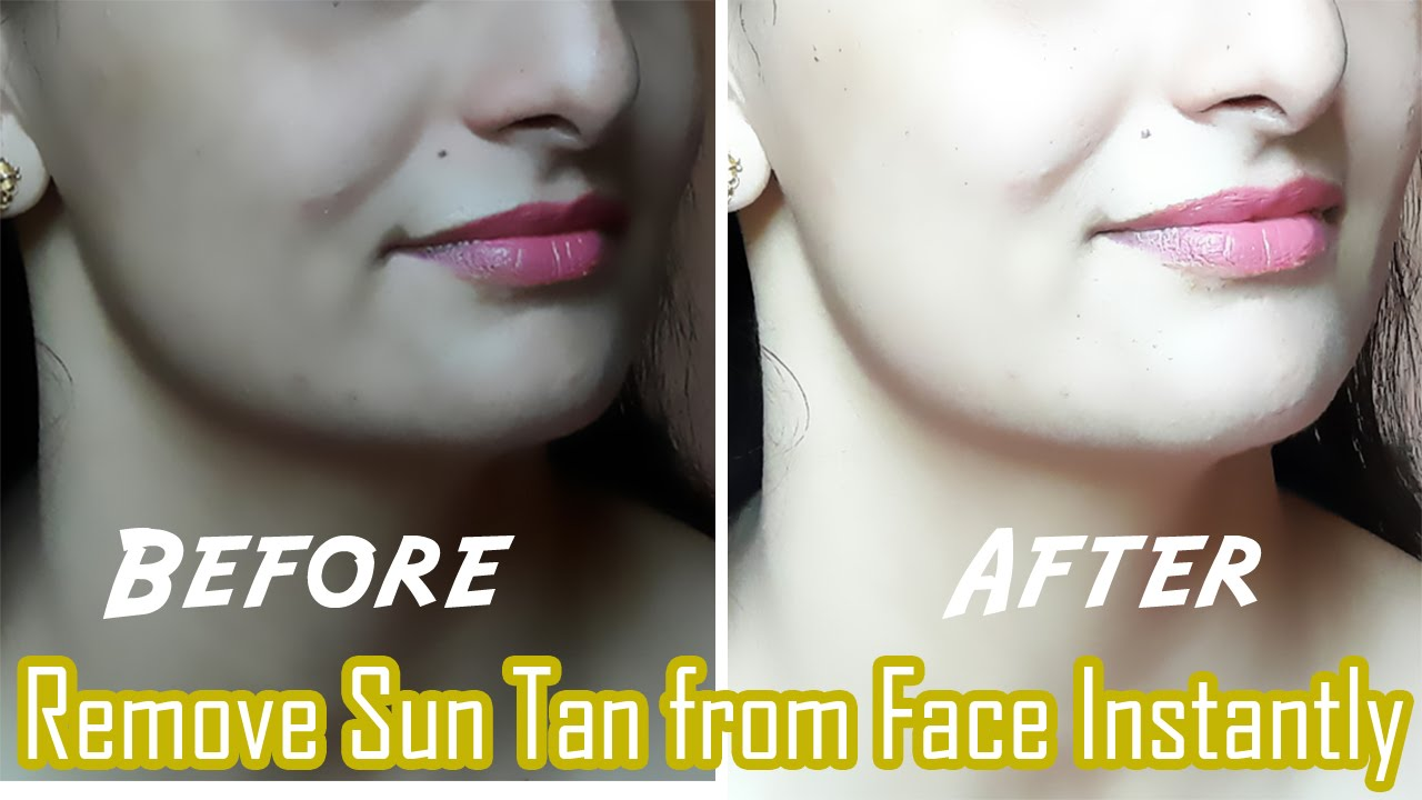 How to remove sun tan on face naturally – Homemade Summer sun tan removal face packs