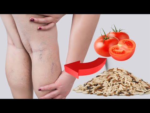 how-to-treat-varicose-veins-naturally-at-home- -varicose-veins-natural-remedy- -urdu/hind/-t-health