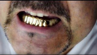 fitting bottom teeth grillz