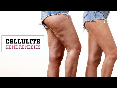 How To Get Rid Of Cellulite Naturally At Home | Skin Care Tips