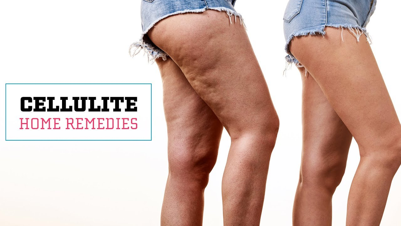 Download How To Get Rid Of Cellulite Naturally | Glamrs Skin Care