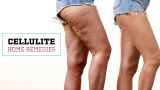 How To Get Rid Of Cellulite Naturally | Glamrs Skin Care