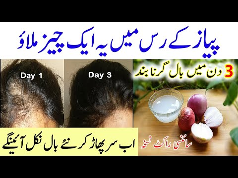 in-3-days-stop-hair-fall-and-get-thicker-and-longer-hair-|-bal-lamby-karne-ka-tarika