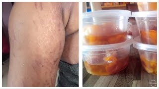 WORLDS MOST EFFECTIVE STRETCH MARKS REMOVALS CREAM