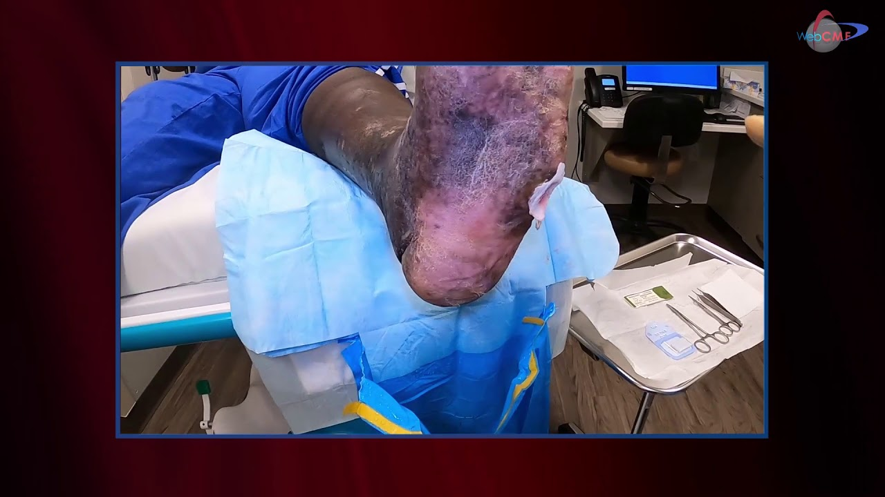 Download WCW: Applying the Derma Gide Graft with Sutures