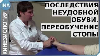 Последствия неудобной обуви. Переобучение стопы. Кинезиология. Германия