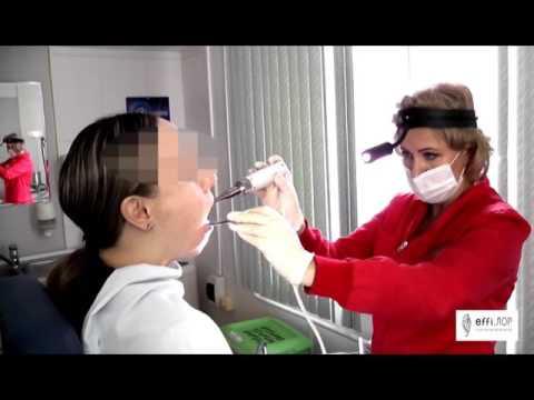 Фонофорез нёбных миндалин в клинике effi