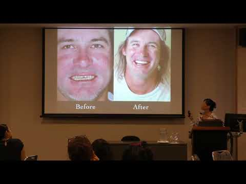 Physiologic Occlusion - The Bite And Body Connection: Dr Vicky Ho Part 2