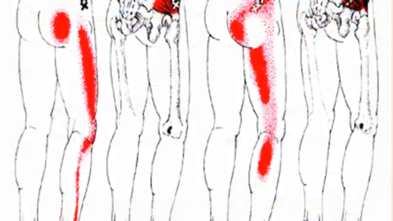 أسباب ألم الفخذ الورك وكيفية العلاج Youtube