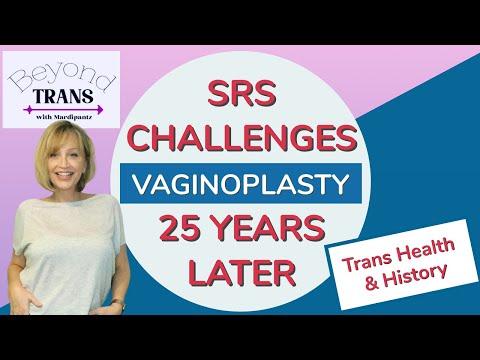 SEX CHANGE POST OP CHALLENGES DECADES LATER | SRS Transgender MTF Transition