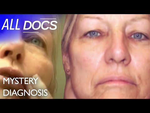 The Woman with the Giant Lump on Her Neck: Paraganglioma | Medical Documentary | Reel Truth from YouTube · Duration:  43 minutes 50 seconds
