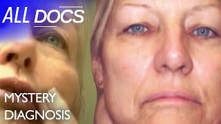 The Woman with the Giant Lump on Her Neck: Paraganglioma | Medical Documentary | Reel Truth