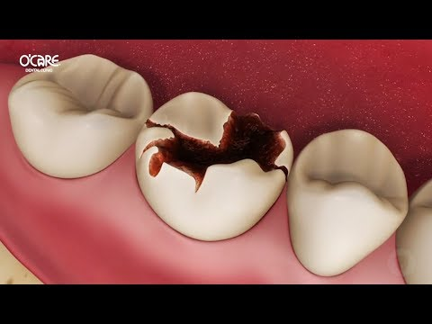 Trám răng sâu bằng phương pháp tốt nhất inlay-onlay
