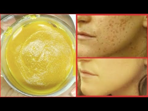 how-to-get-rid-of-hyperpigmentation-naturally-and-fast,-dark-spots-and-marks