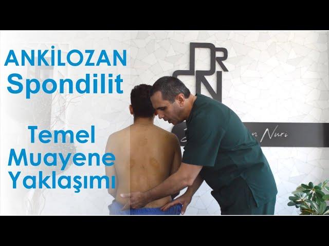 Ankilozan Spondilit ve Eklem Ağrılarında Temel Muayene Yaklaşımı - Sağlıklı Bilgi - Dr. Ceyhun Nuri