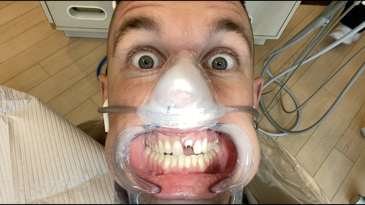 Major Dental Surgery! Unexpected issues!