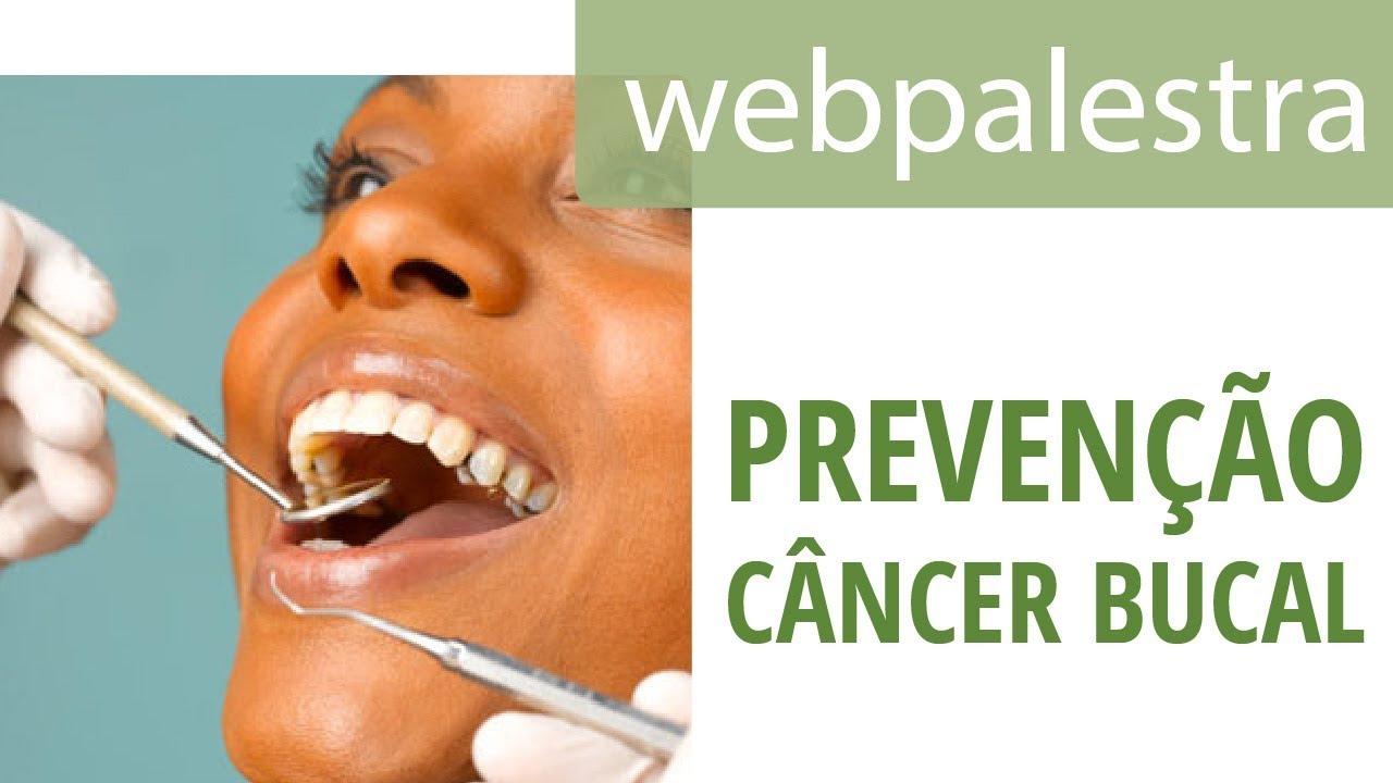 cancer bucal bulimia squamous papilloma vs verruca vulgaris