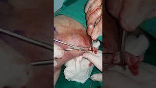 Tromblasma damarda Tromboflebit Lazerle tromb emeliyyati Tromb nece olur Tromb nedir İsmayil hekim