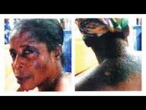 A JAMAICAN EPIDEMIC THE DANGERS OF BLEACHING 2014