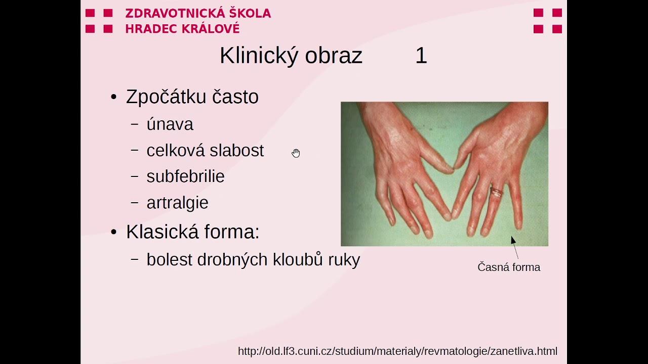 artralgie lupus