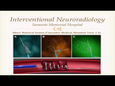 Endovascular Technologies in the Treatment of Stroke, by Daniel Case, MD
