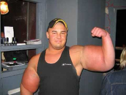 this is synthol not steroids - YouTube