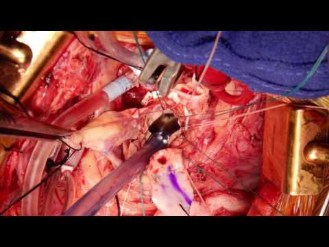 Management of the Small Aortic Root Using the Floating Valve Technique