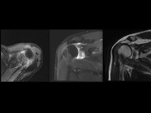 Мрт плечевого сустава видео тендинит коленного сустава лечение народными средствами