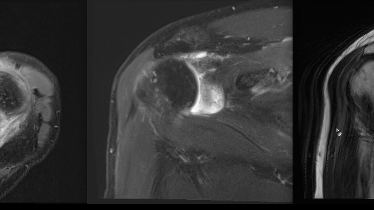 Мрт плечевого сустава видео удаление суставного храща на пальце стопы