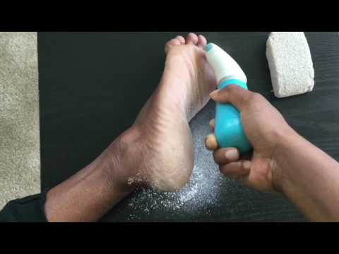 How to Remove Dry Cracked Heel from Feet Instantly