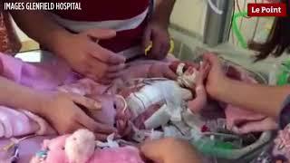 Un bébé né avec le cœur hors de la poitrine