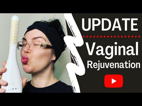 Download UPDATE: Vaginal Rejuvenation - Silk'n TIGHTRA