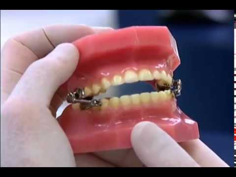 Kentucky Orthodontics & Invisalign: Herbst Appliance