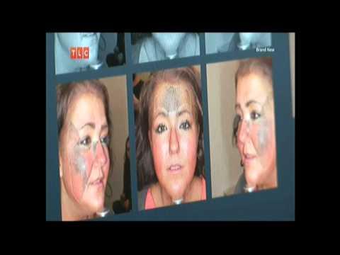 Skin Pigmentation Sun Damage Treatment Extreme Beauty Disasters United Kingd
