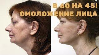 Омоложение лица – в 60 выглядеть на 45!