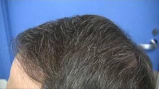 Dr Wong Hair Transplant - 5053 Grafts - 1 Session