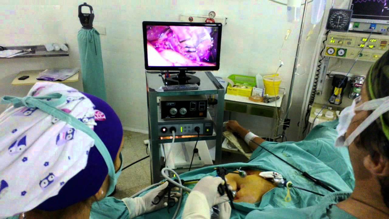 Colecistectomía laparoscópica Americana modif Dr Vizcaíno (4).mp4 ...
