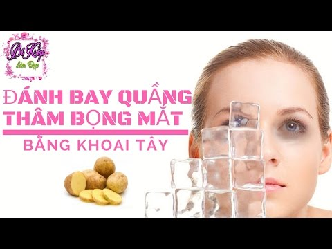 Trị thâm quầng mắt, đánh bay bọng mỡ nhanh chóng bằng khoai tây | BÍ KÍP LÀM ĐẸP