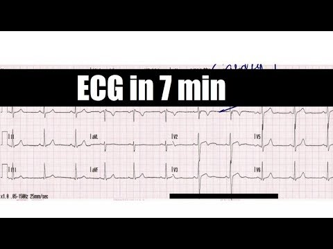 ECG in 7 min  ( Electrocardiography - Cardiovascular physiology )