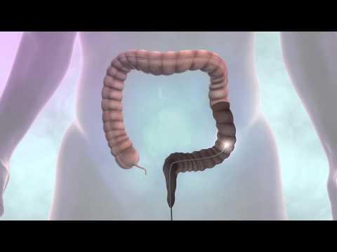 Testing for bowel cancer