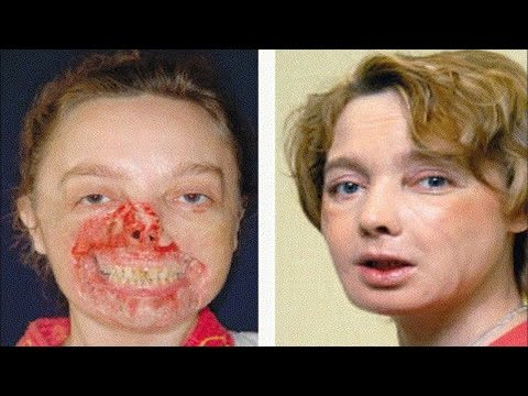 about face the face transplant debate The first full face transplant took place in 2010 in spain the procedures set off a firestorm of ethical debate about whether such risky surgeries should be undertaken to improve someone's.