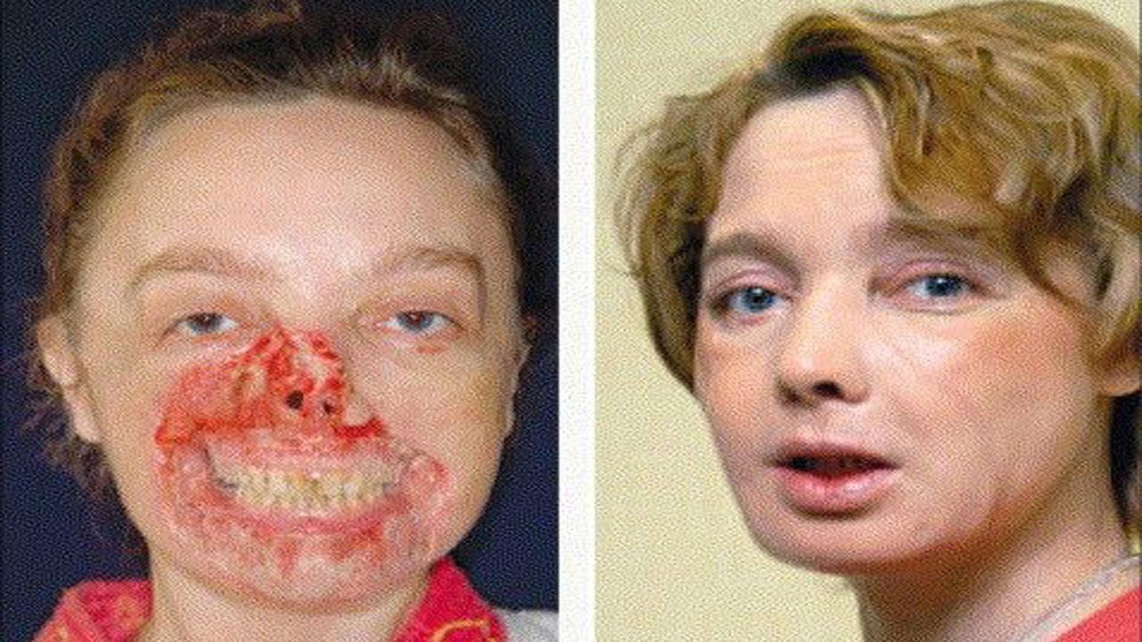 Facial france transplant