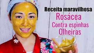 Máscara de açafrão para espinhas e manchas – ÓTIMO PARA O TRATAMENTO DE ROSÁCEA E OLHEIRAS